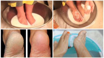Μην σπαταλάτε τα χρήματα σας σε πεντικιούρ: Χρησιμοποιήστε αυτά τα 2 συστατικά και κάντε τα πόδια σας όμορφα!