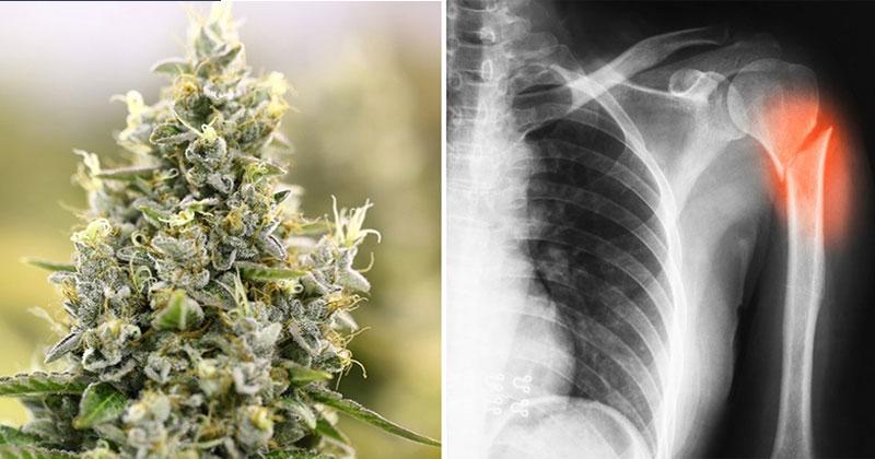 Μαριχουάνα: Βοηθά στην Επούλωση Σπασμένων Οστών και τα Κάνει πιο Γερά