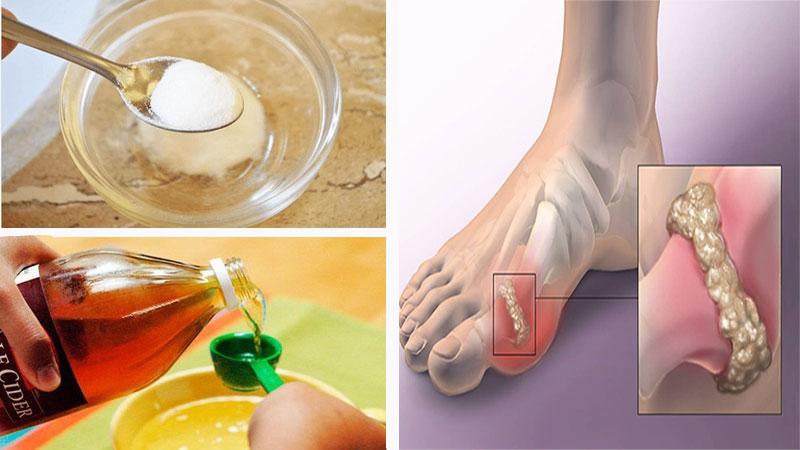 Θεραπεύστε την Ουρική Αρθρίτιδα & Διώξτε τους Κρυστάλλους Ουρικού Οξέος από το Σώμα σας