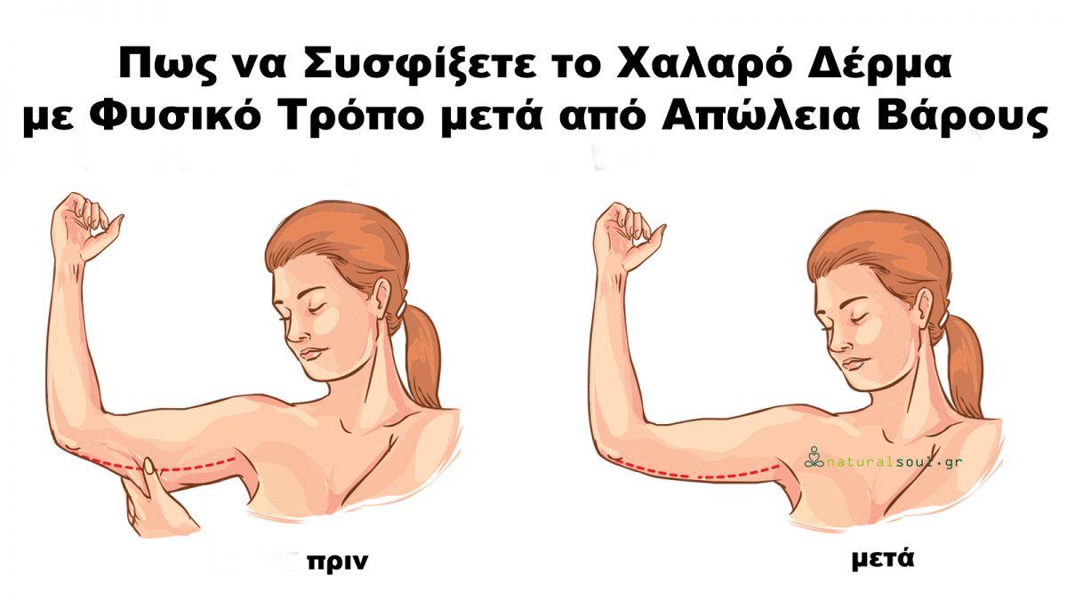 Πως να Συσφίξετε το Χαλαρό Δέρμα με Φυσικό Τρόπο μετά από Απώλεια Βάρους