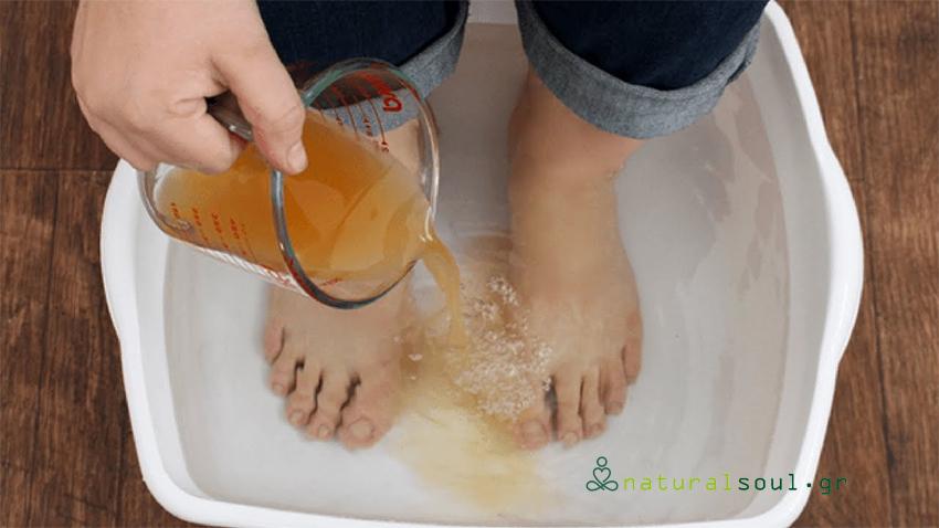 Μάθετε πως να κάνετε Ποδόλουτρο με Μηλόξυδο για να Θεραπεύσετε το Σώμα σας
