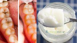 Πώς να Θεραπεύσουμε τις Οδοντικές Κοιλότητες (τρύπες) στα Δόντια και να Καταπολεμήσουμε την Τερηδόνα.