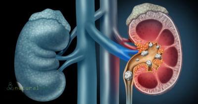 10 Συνήθειες που Μπορεί να Προκαλέσουν Βλάβη στα Νεφρά μας!