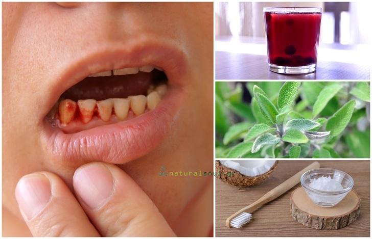 Ουλίτιδα: Οι 9 Καλύτερες Σπιτικές Θεραπείες για την Αντιμετώπιση