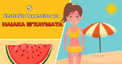 Ηλιακά Εγκαύματα: 5 Αποτελεσματικές Σπιτικές Θεραπείες