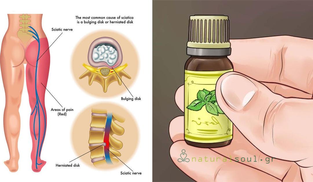 Τρίψτε αυτά τα Μείγματα Αιθέριων Ελαίων στο Ισχιακό Νεύρο για Άμεση Ανακούφιση του Πόνου